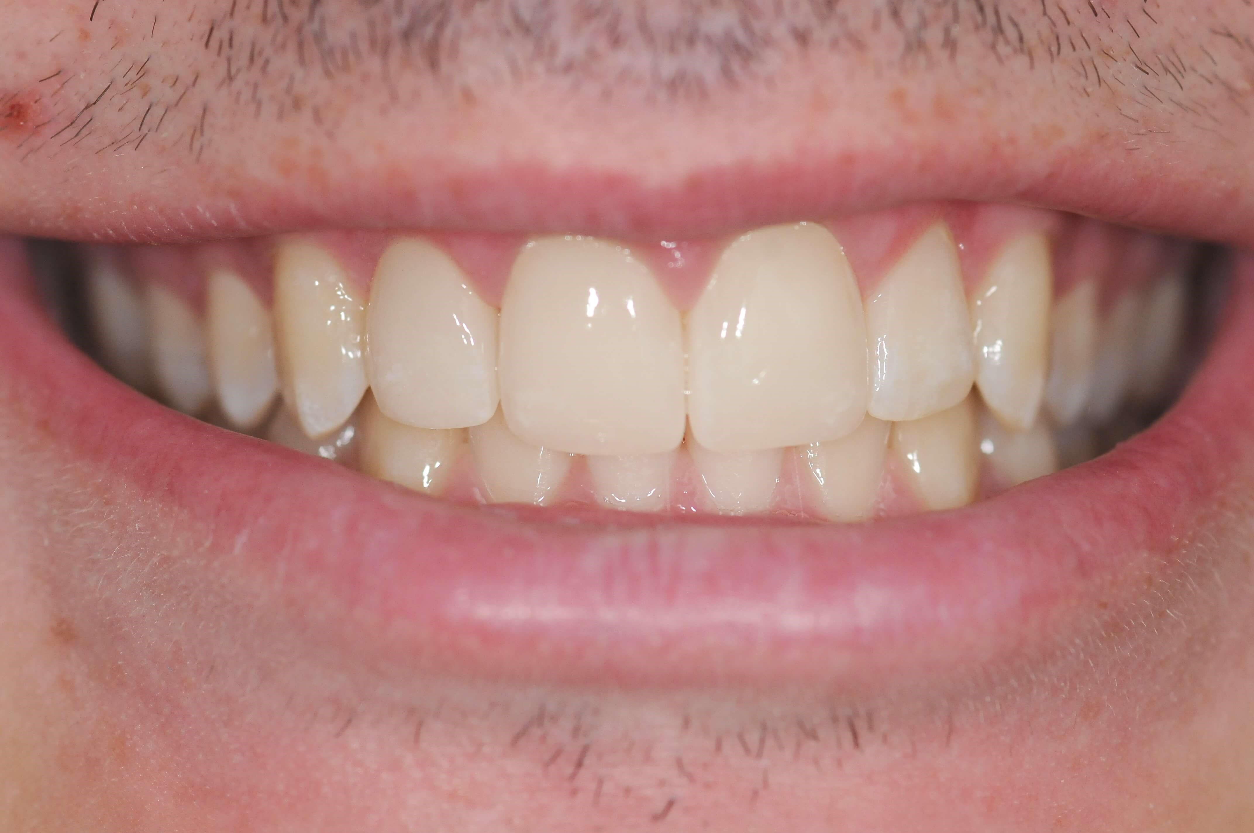Final Results After - Full Smile