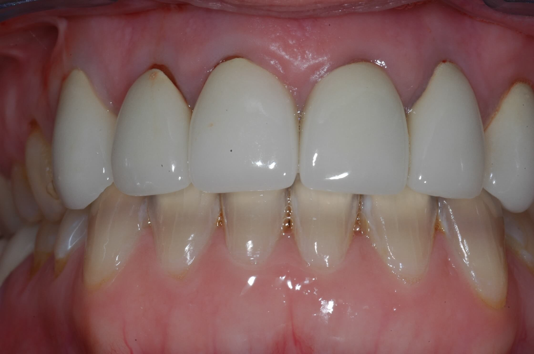 All Ceramic Crowns Before