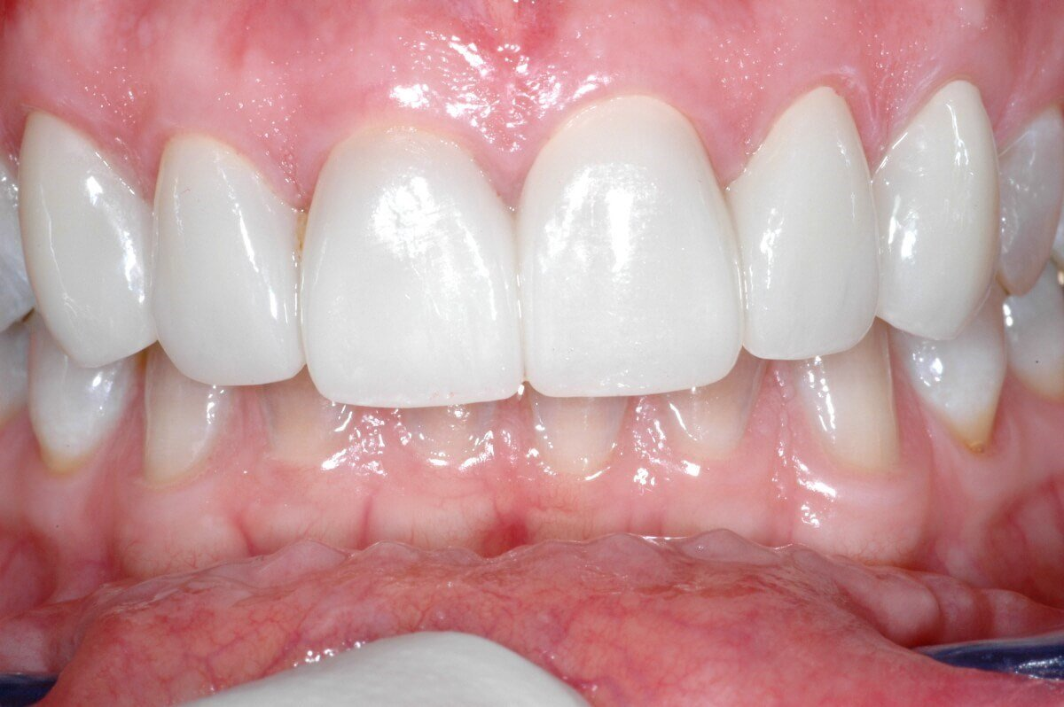 PorcelainVeneers After