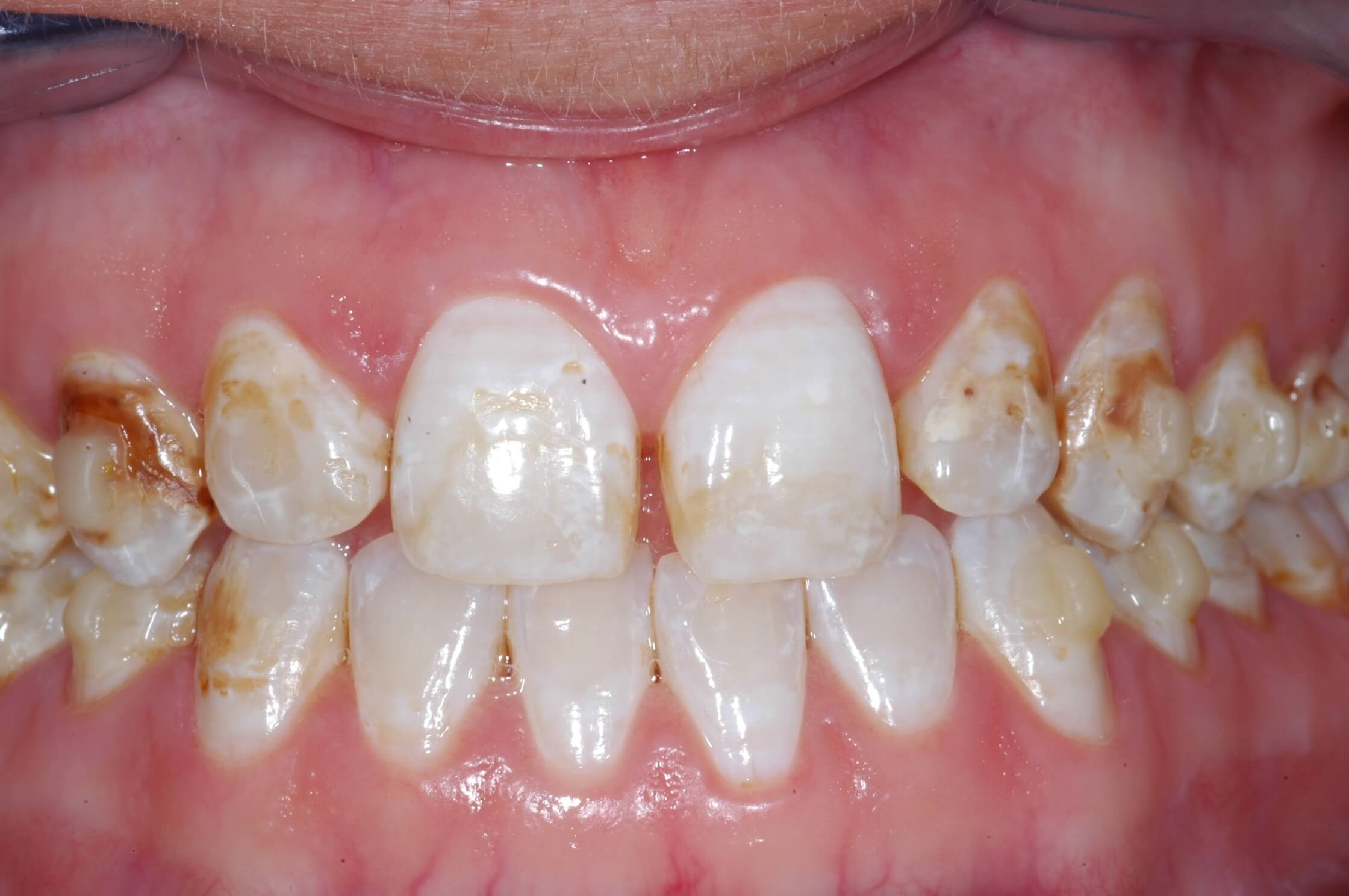 Congenitally Defective Teeth Before