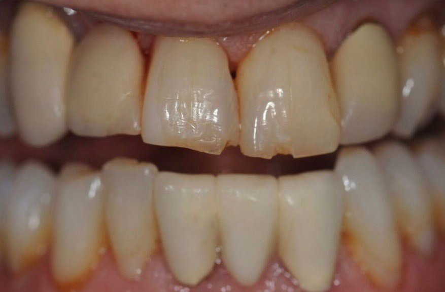 Cosmetic Dental Bonding Before