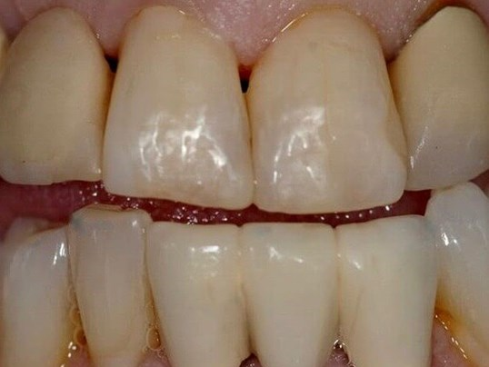 Cosmetic Dental Bonding After
