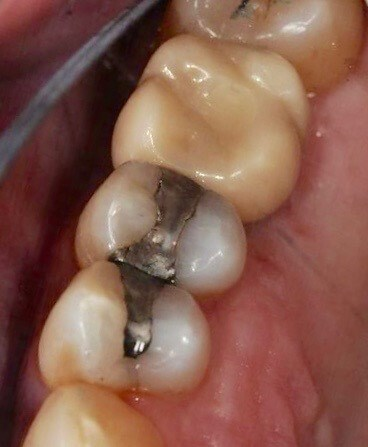 Single Tooth Dental Implant After