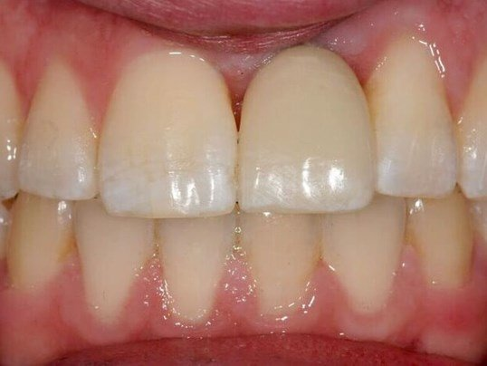 Dental Makeover After