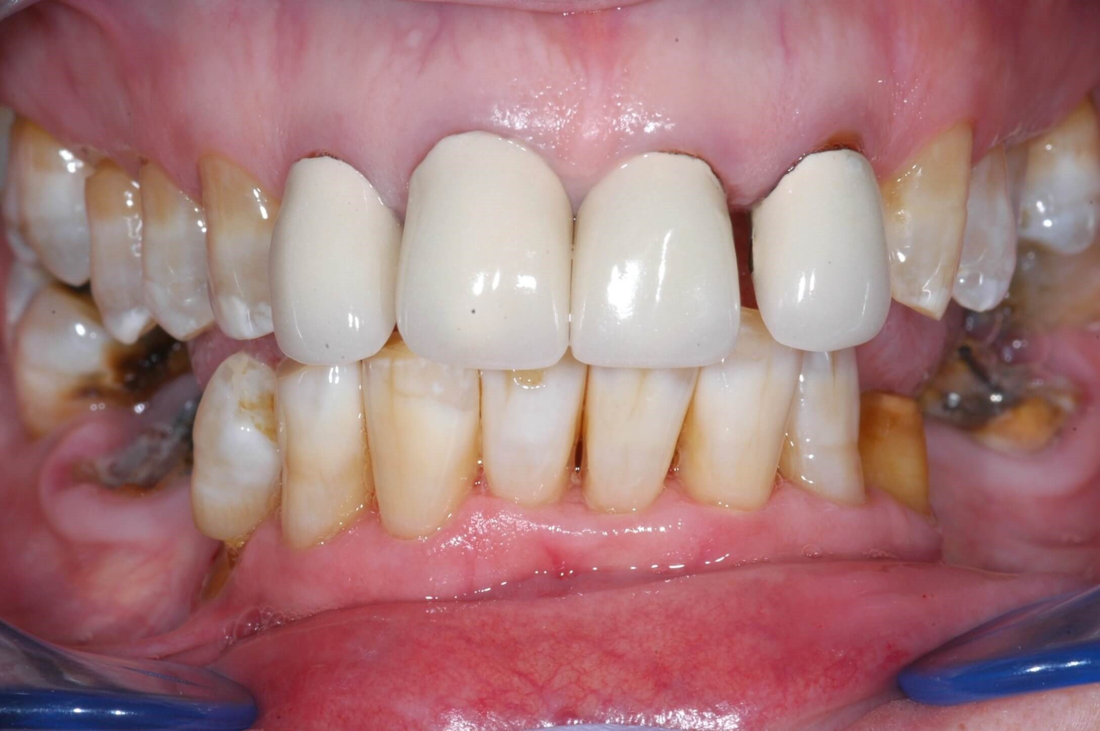 Back to a Happy Smile! Before