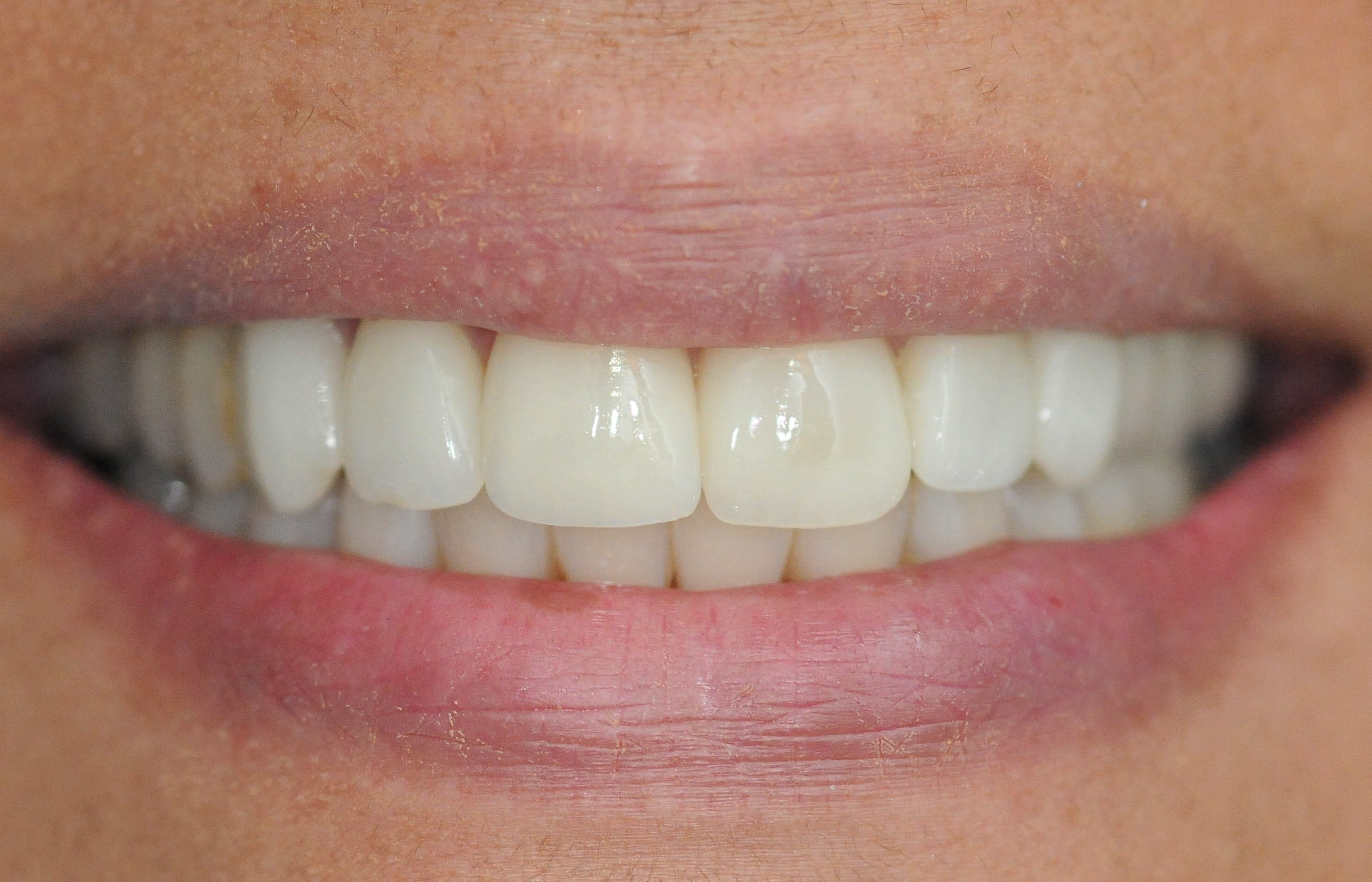 Veneer Repair Results, Plano After Repair