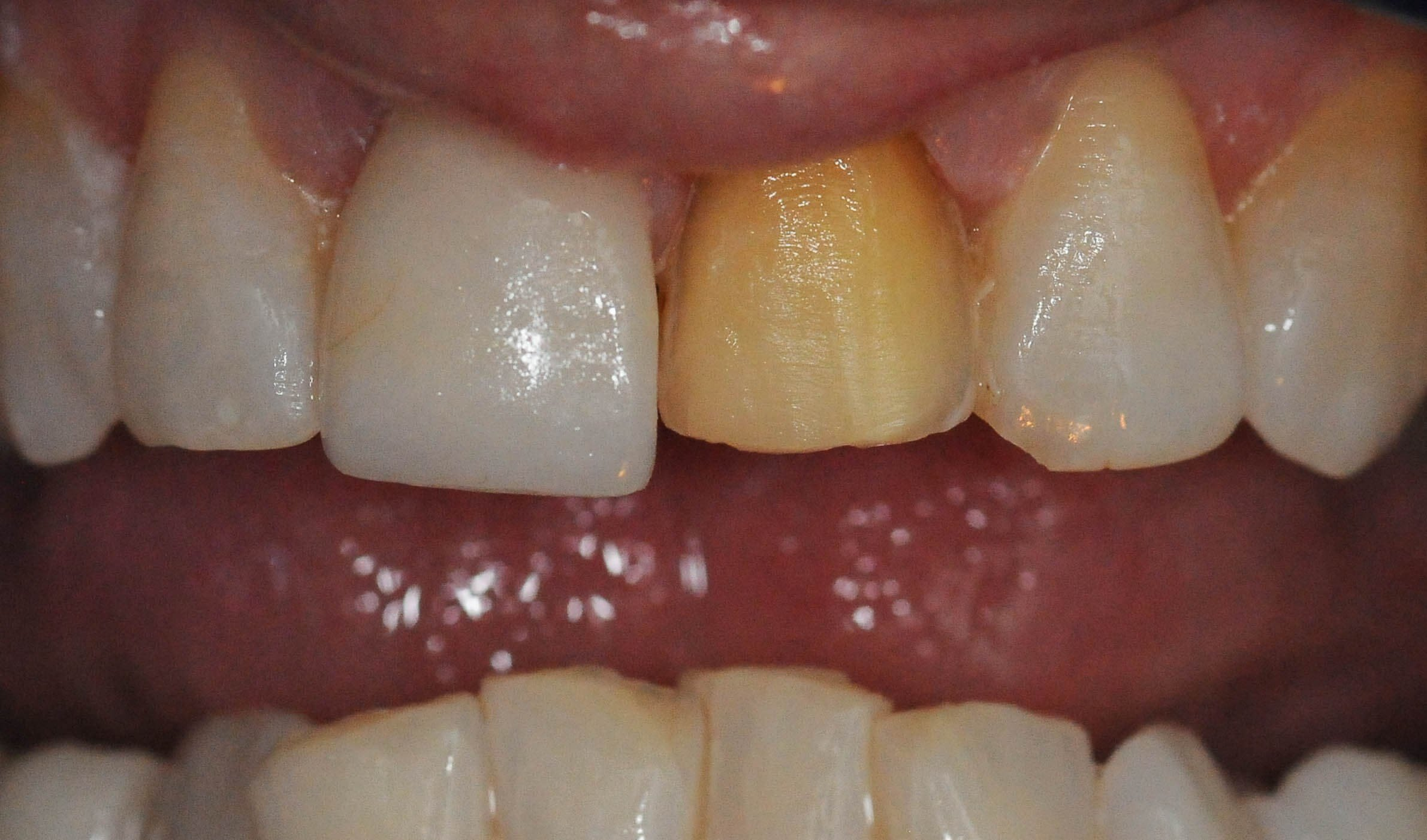 Replacing broken/old Veneers Before