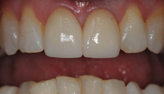 Replacing broken/old Veneers After
