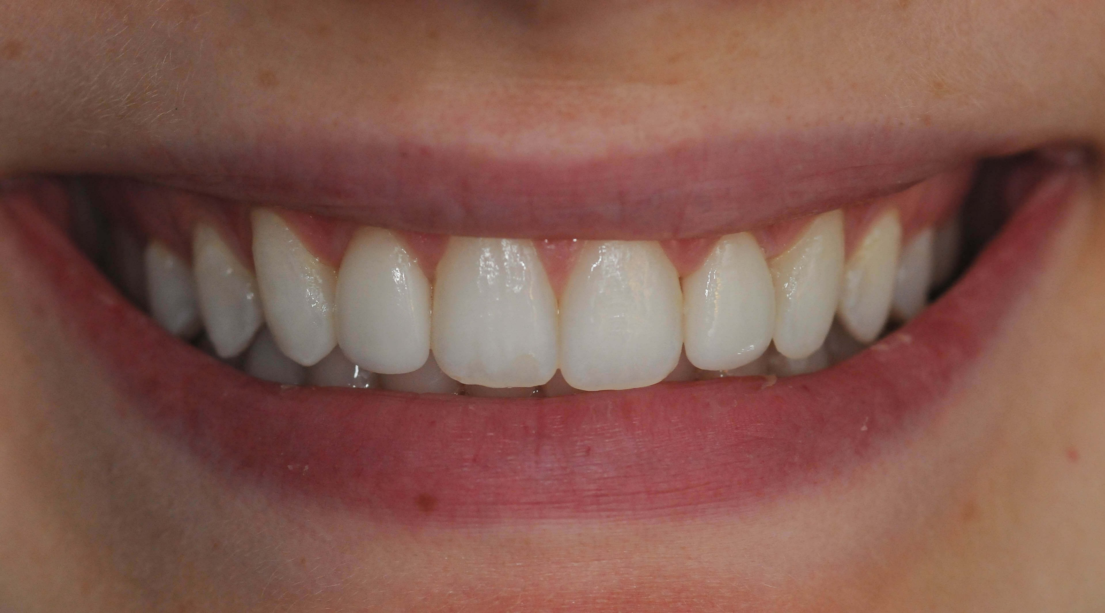 Smile Makeover Results After