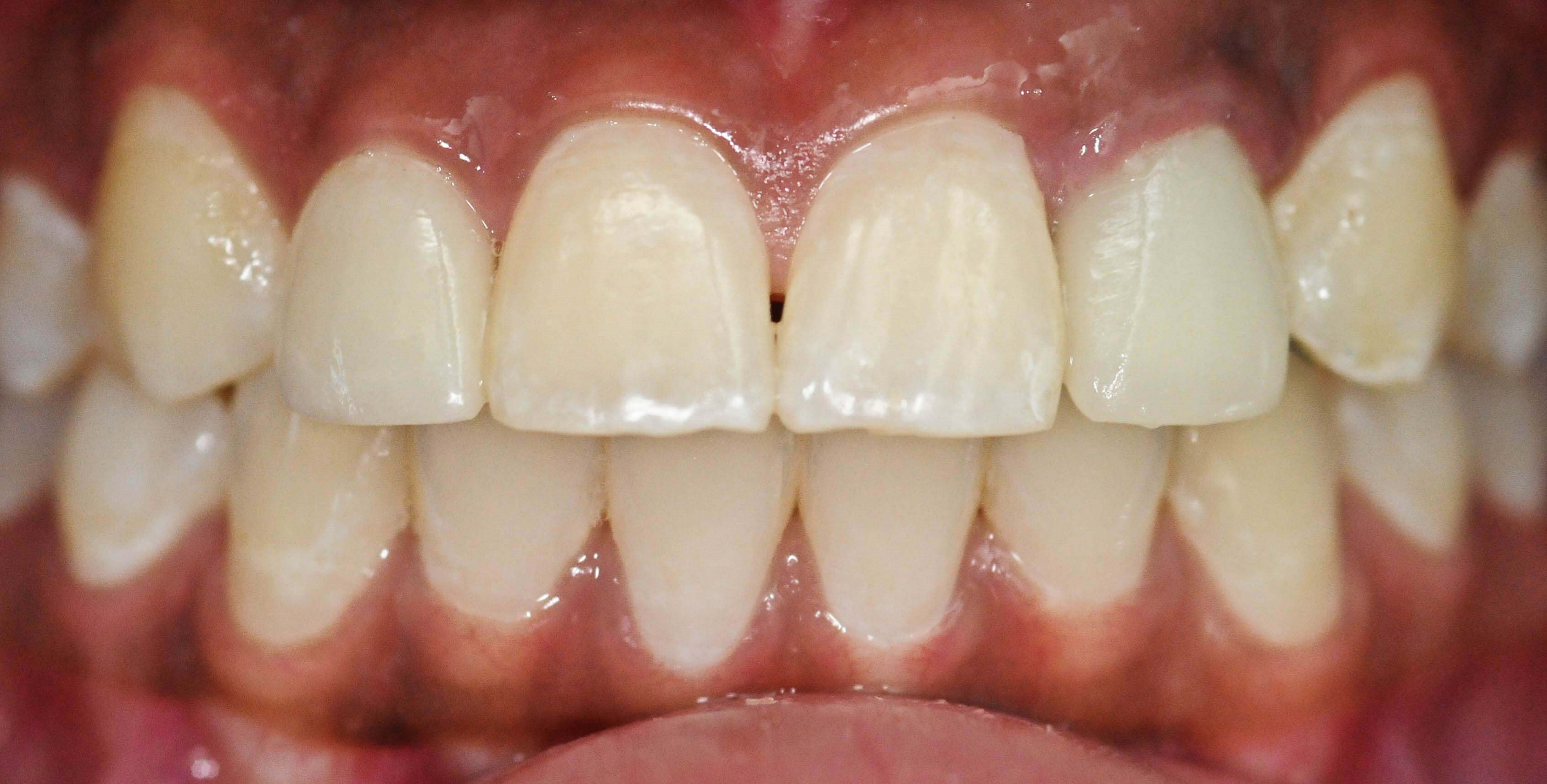 Smile Makeover Plano, Tx After