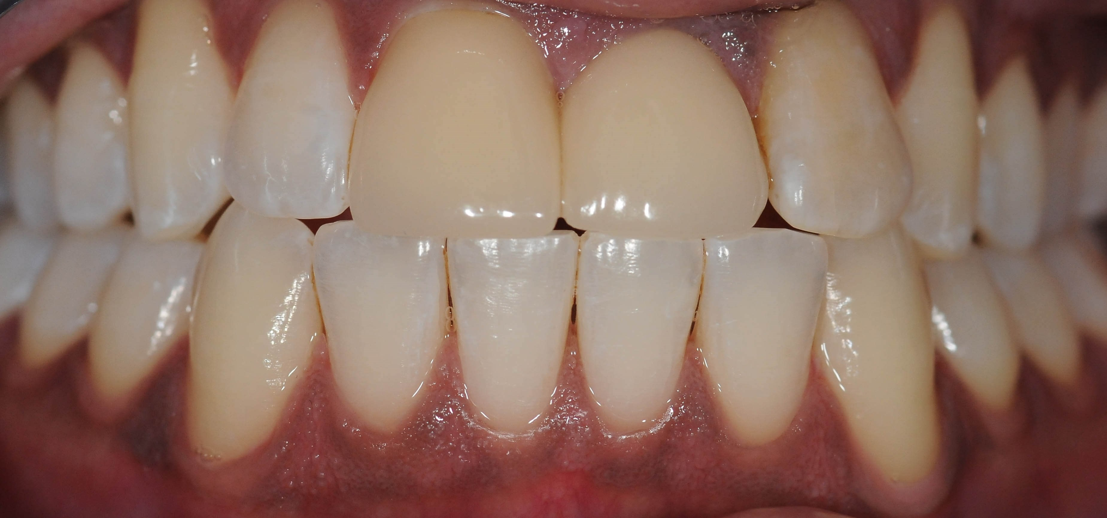 Veneers Create Gorgeous Smile Before