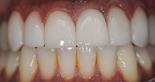 Veneers Create Gorgeous Smile After