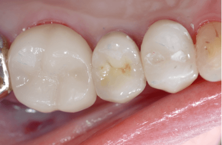 Removing Old Silver Fillings After
