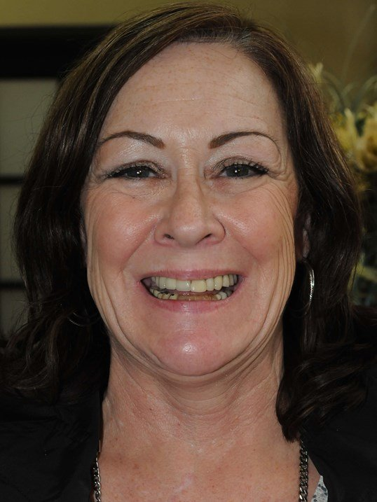 Implant Supported Dentures Before