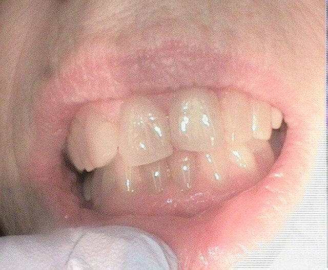 Teeth Whitening Results Before