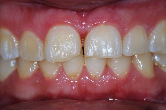 Cosmetic Dentistry Results Before
