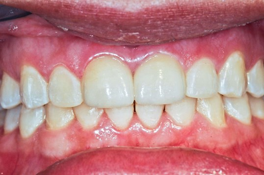 Cosmetic Dentistry Results After