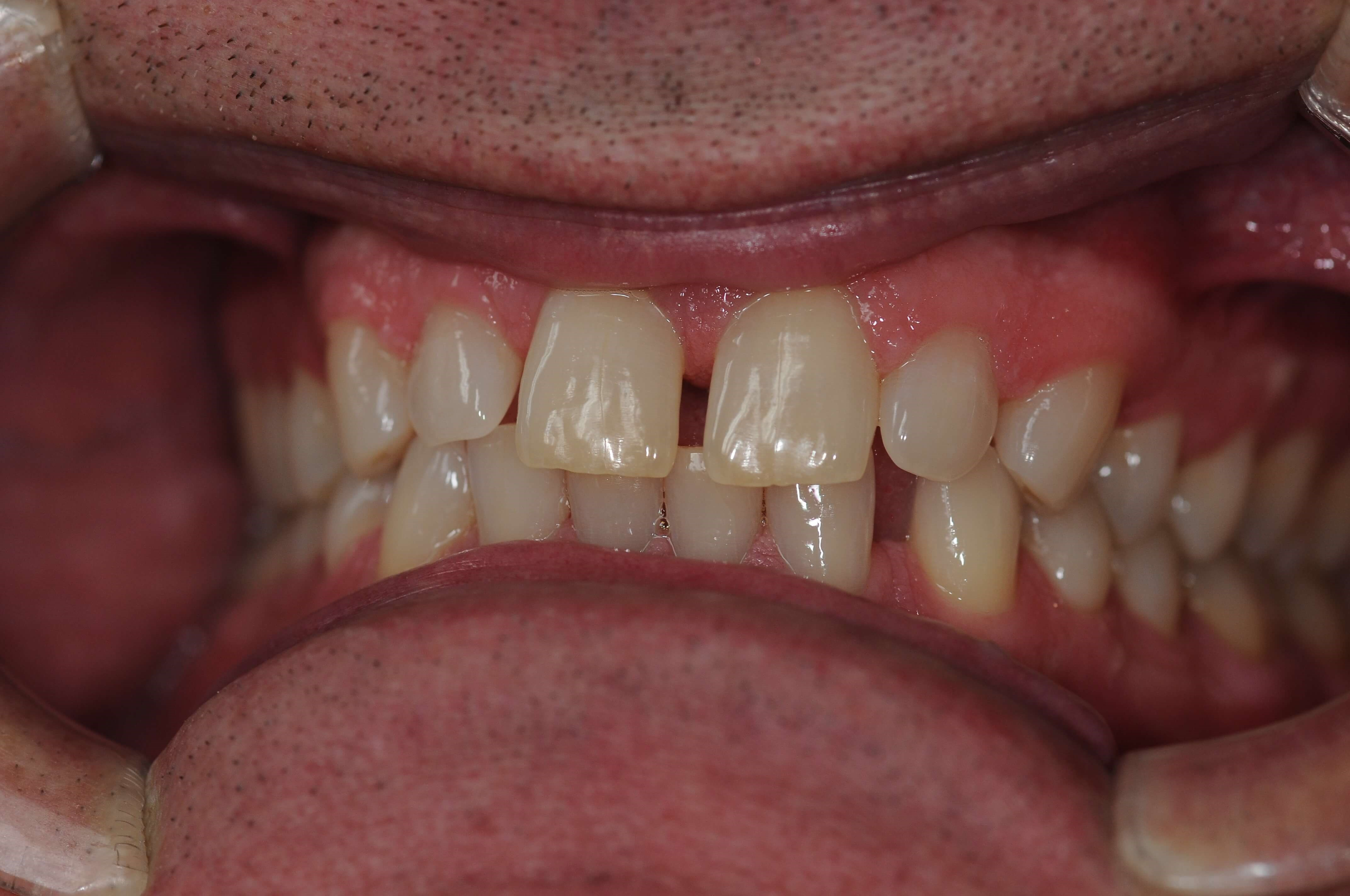 Dental Crowns Close The Gaps Before
