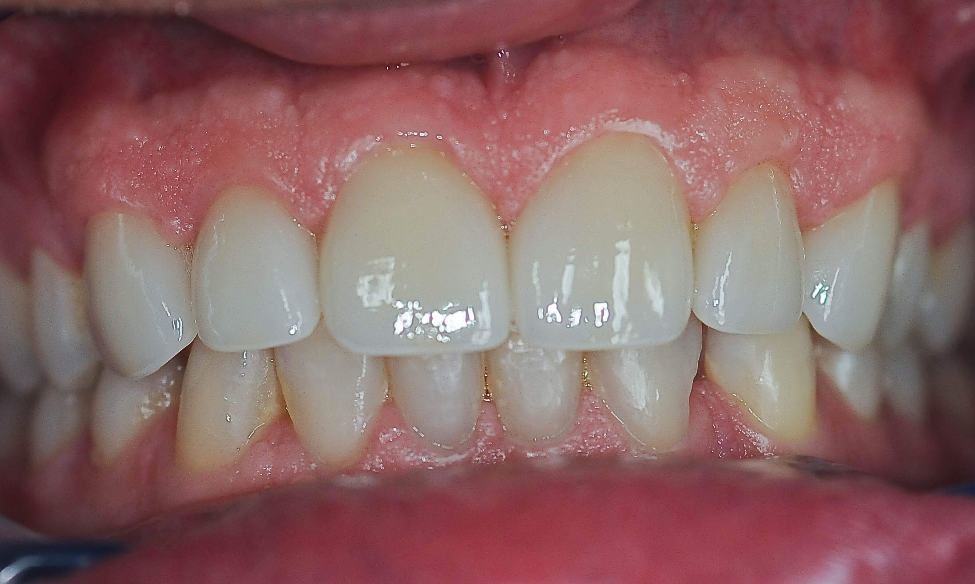Dental Crowns Close The Gaps After