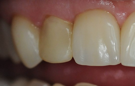 Dental Crown Repair Before