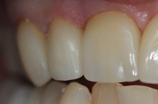 Dental Crown Repair After