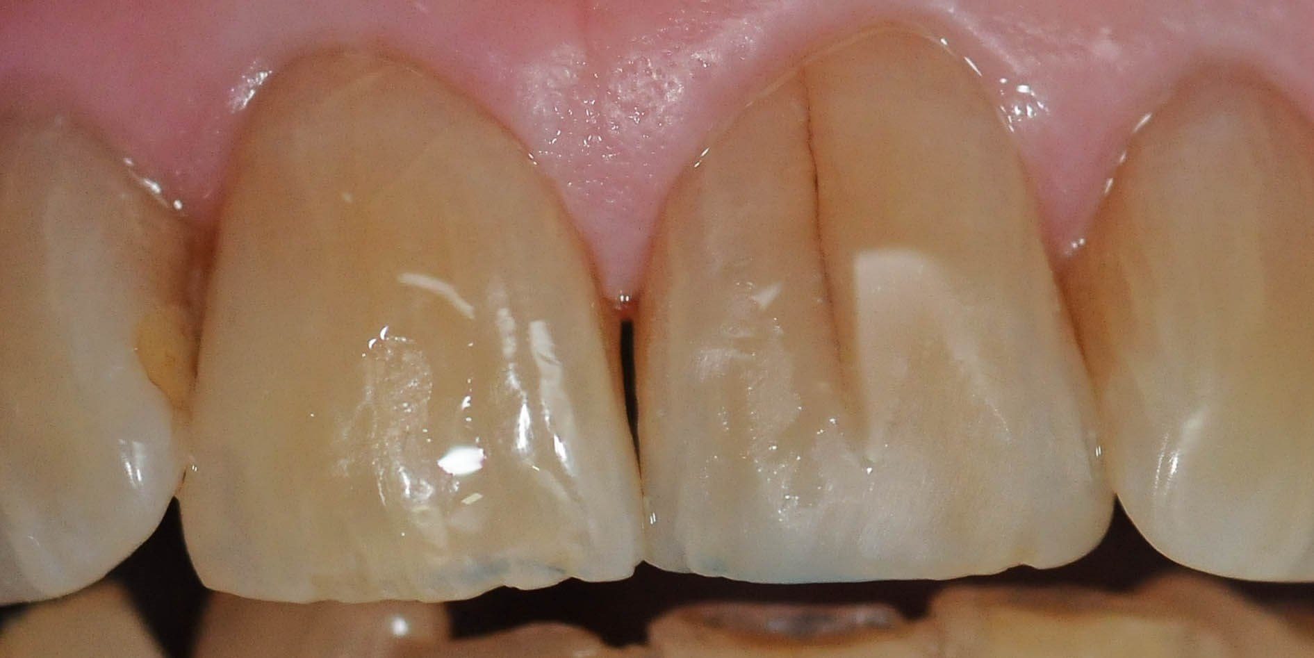 Emergency Repair Front Tooth After