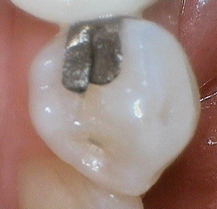 Replacing Broken Amalgam Before