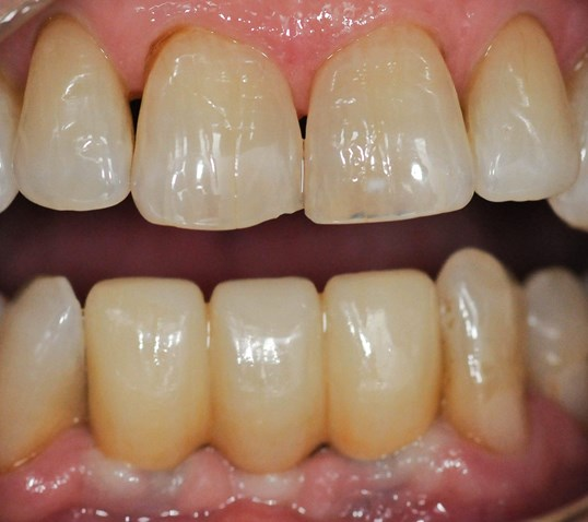 Implant Retained Crowns/Bridge After