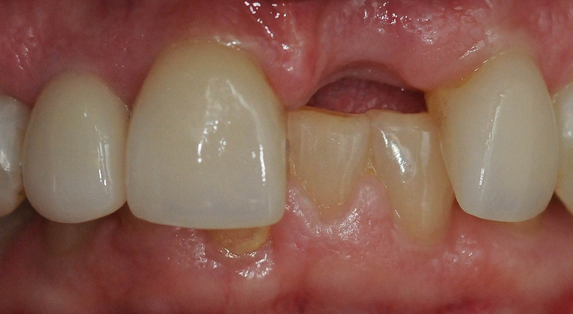 Dental bridge replacing tooth Before
