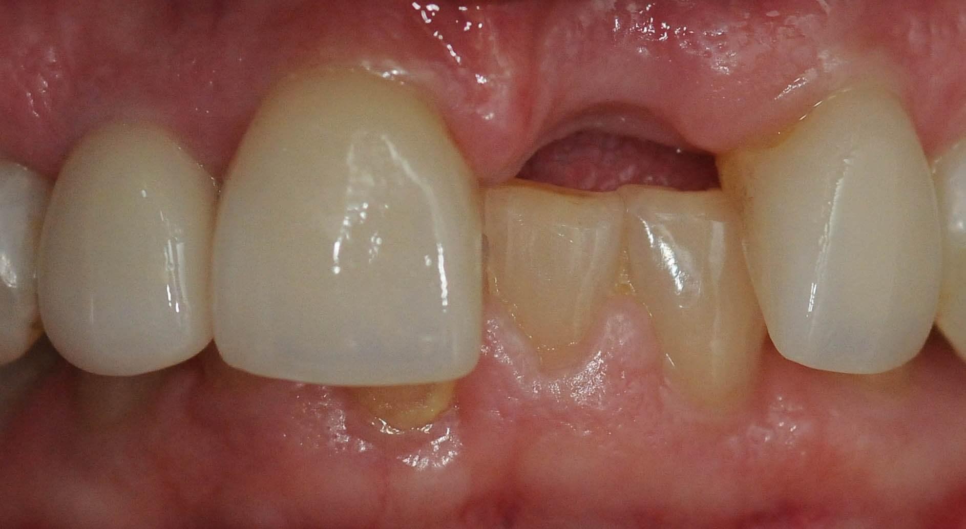 Alternative Option to Replace a Tooth (Dental Bridge), Plano TX