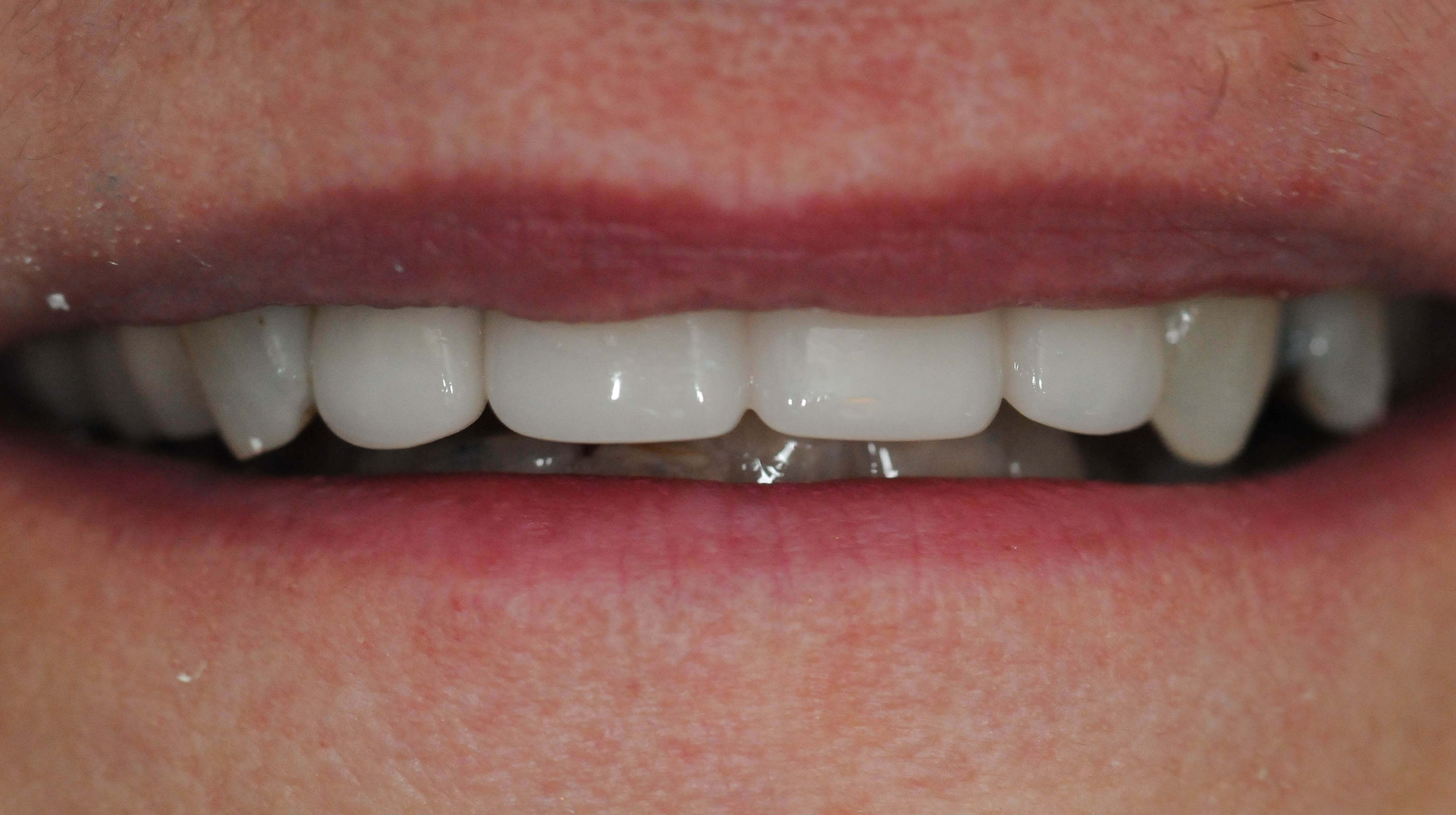 Dental bridge replacing tooth After
