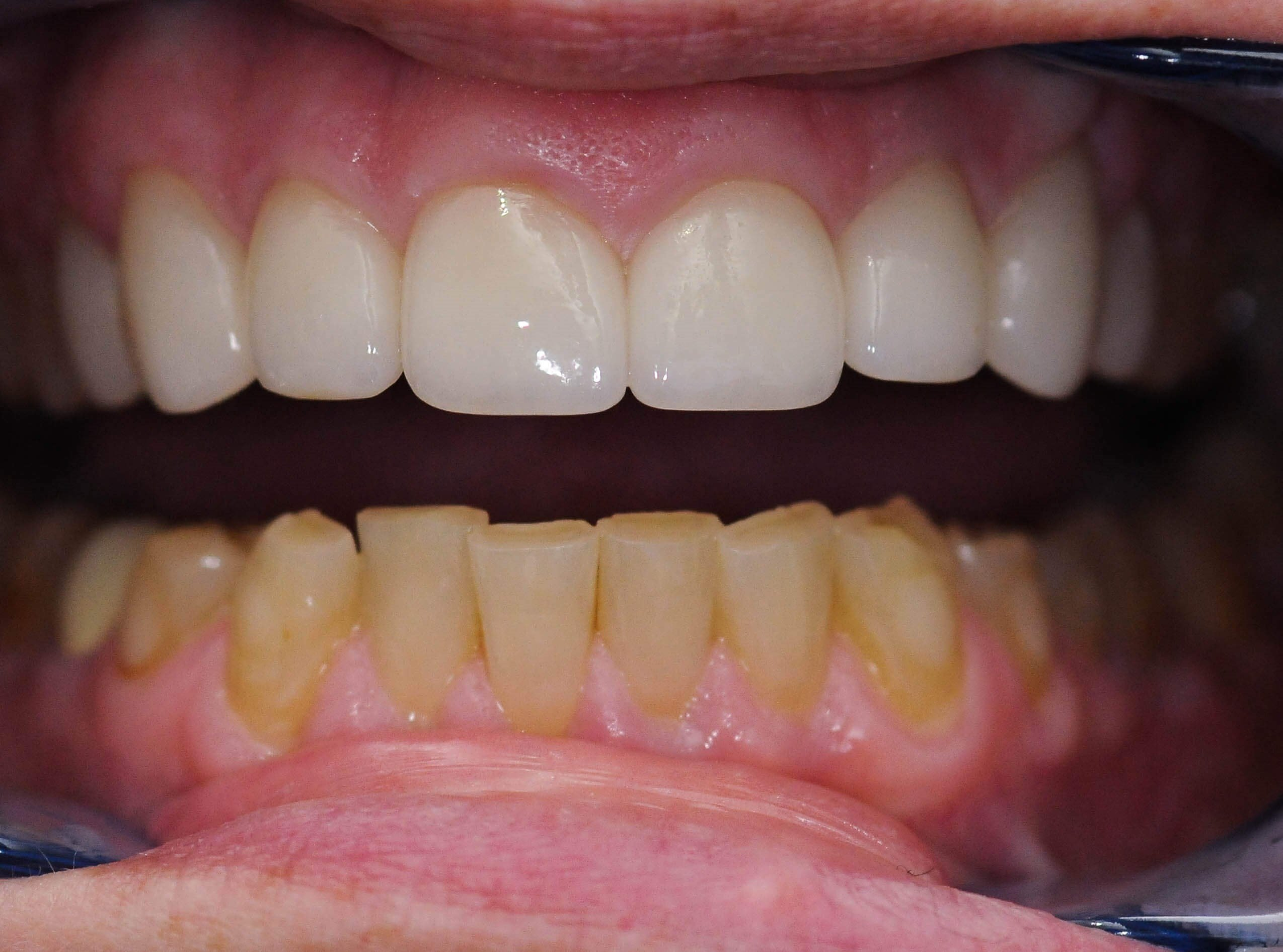 All Ceramic Crowns After