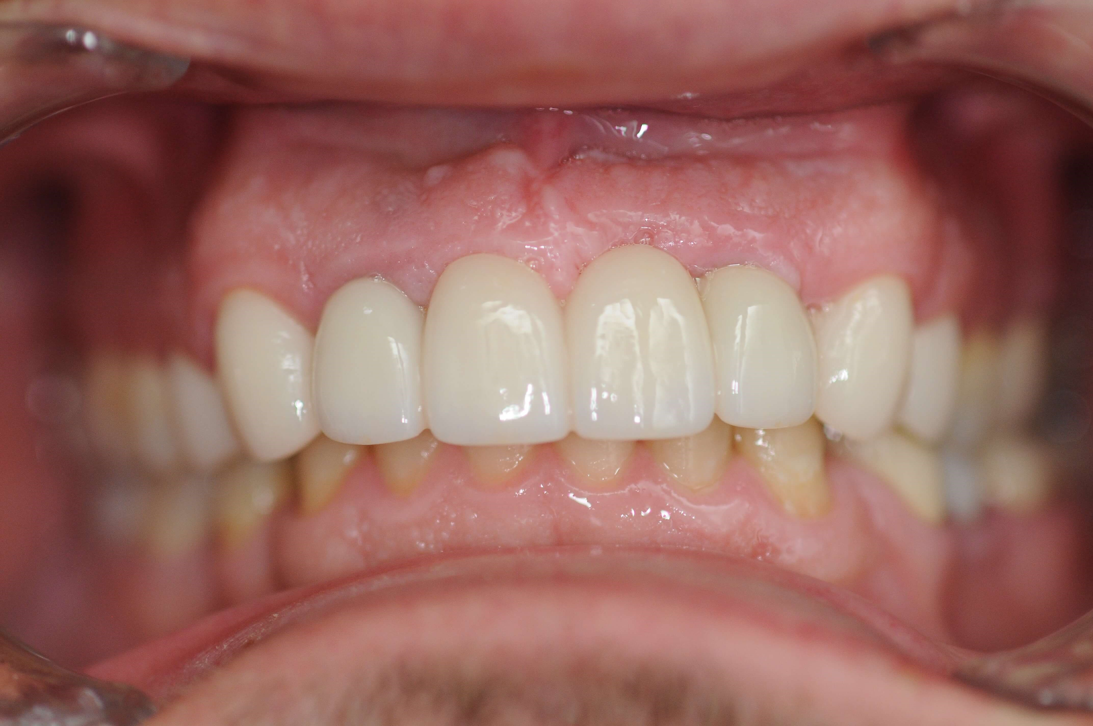 Brand New Smile After