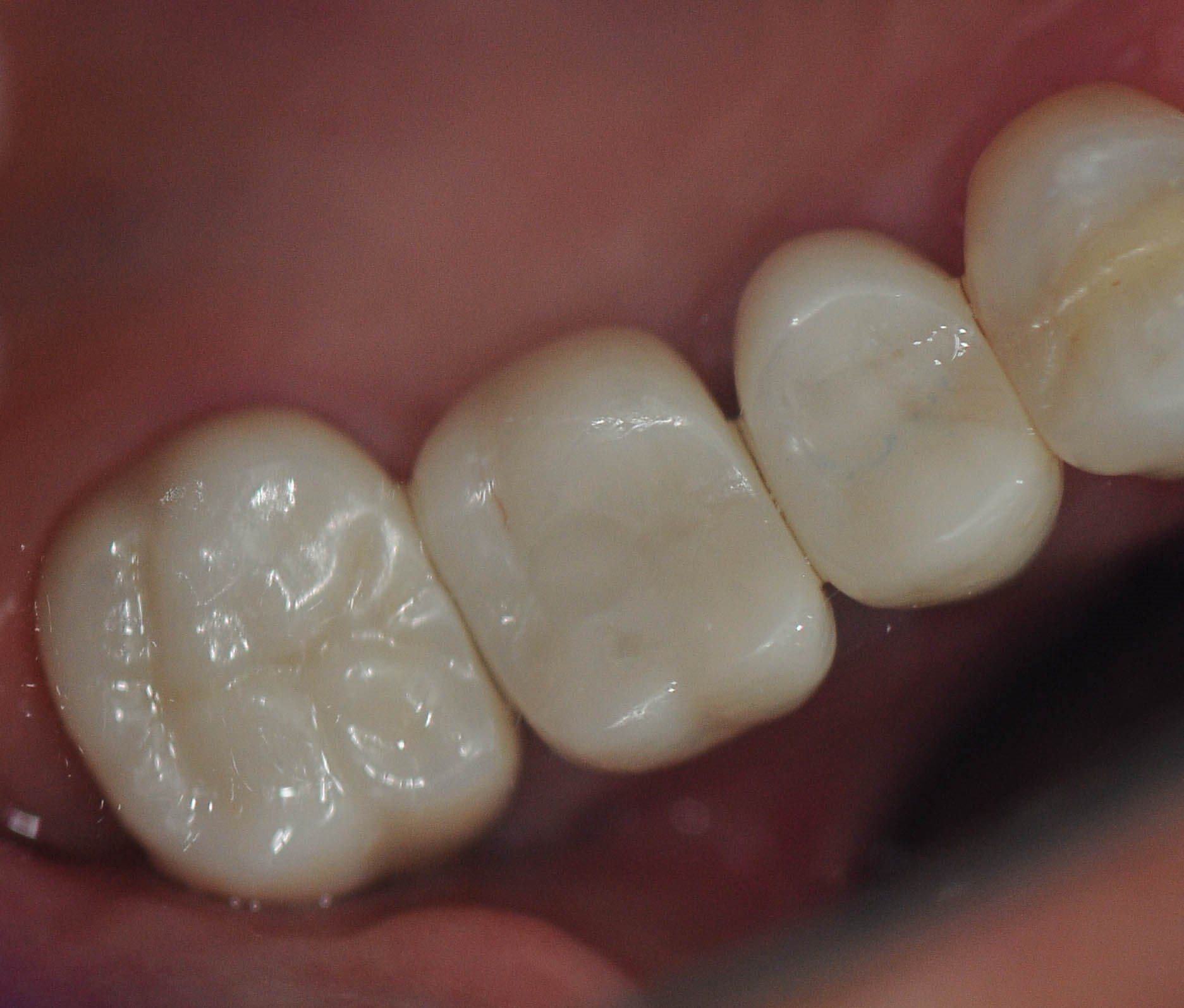 Restoring Implants w/ Crowns Top View