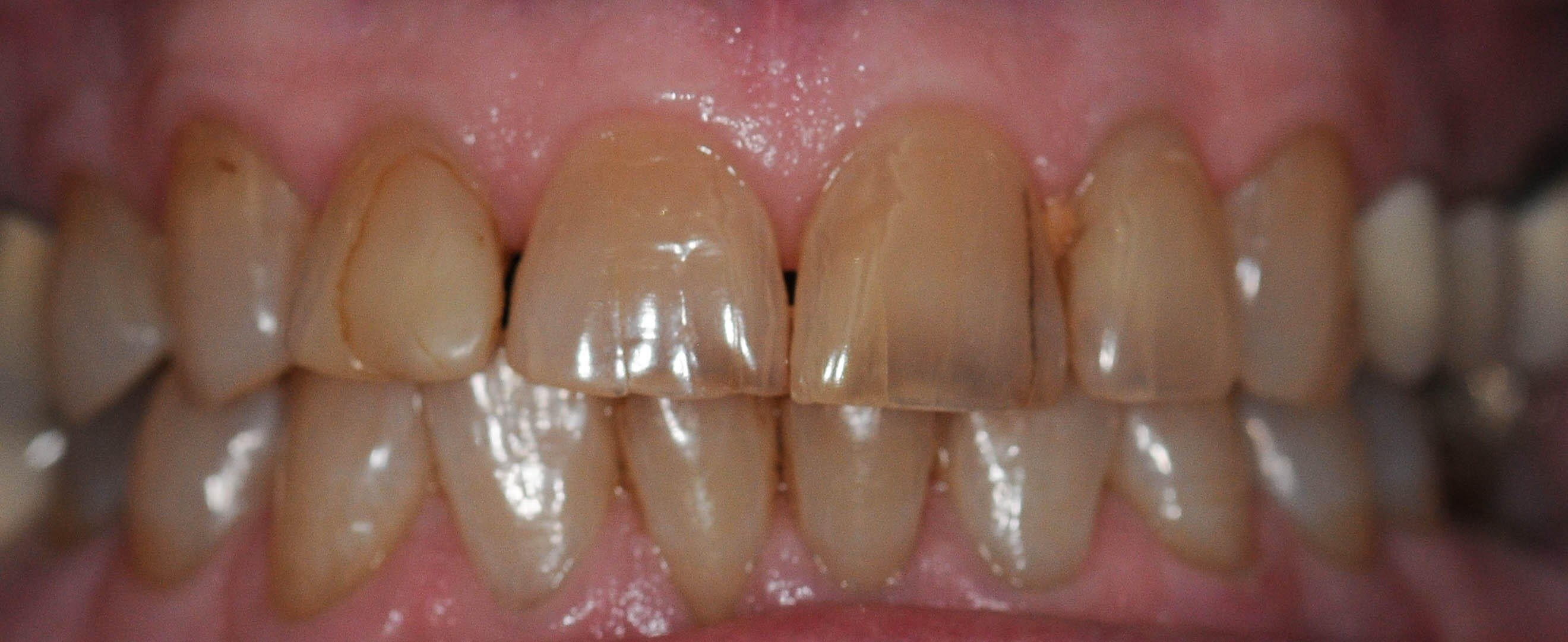 Before and After Whitening Before