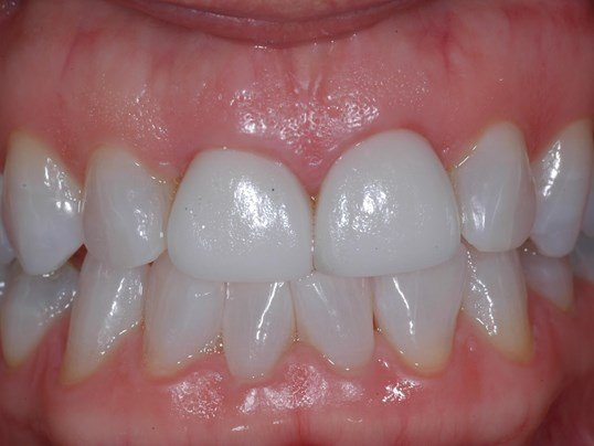 Left front tooth is failing Before  - retracted