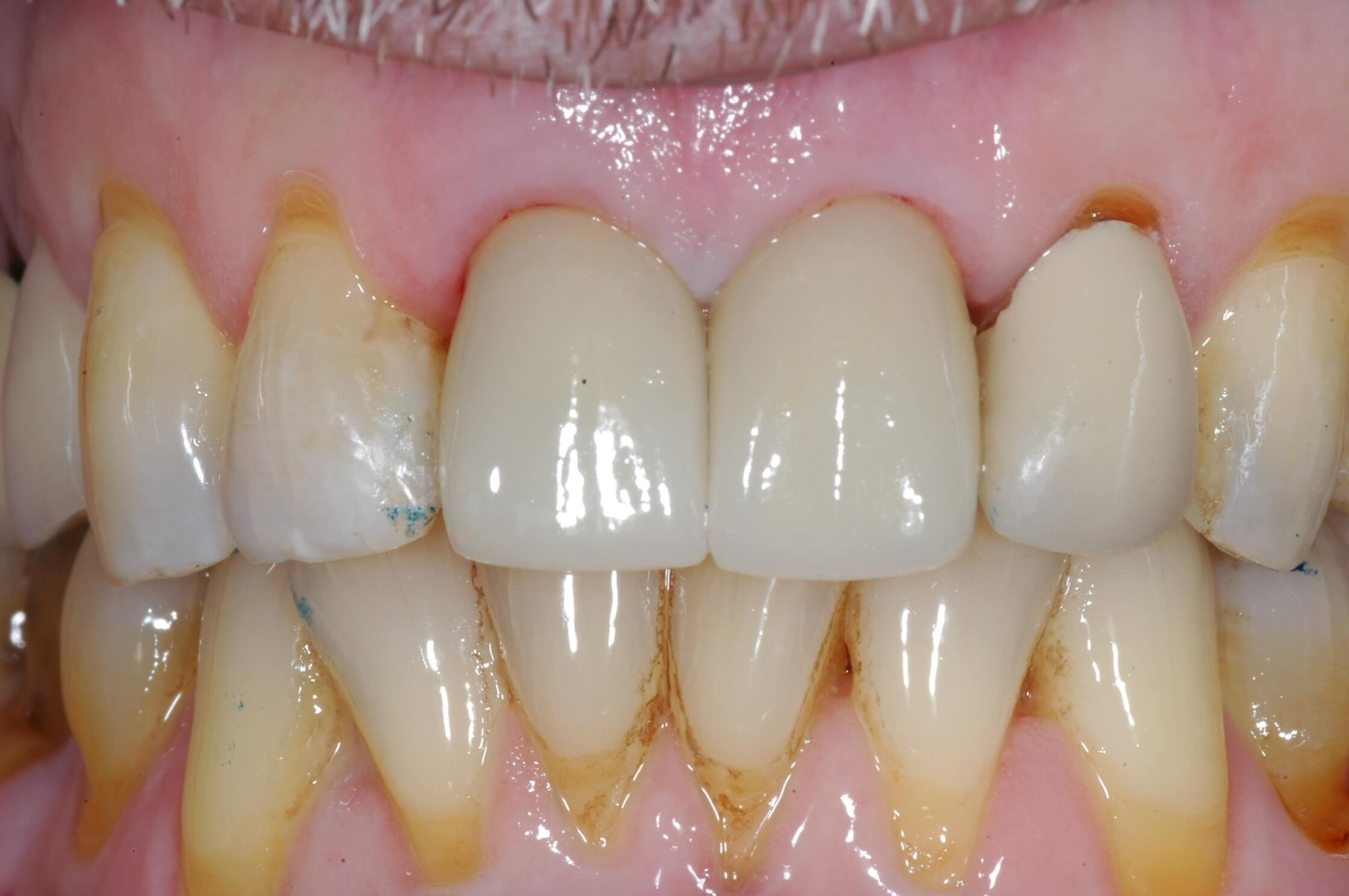Crowns seated 4 months later After