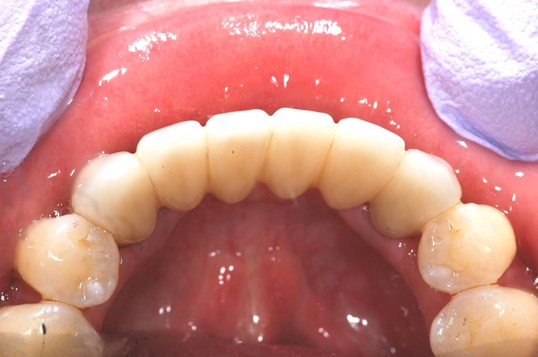 Final bridge After- tongue side view