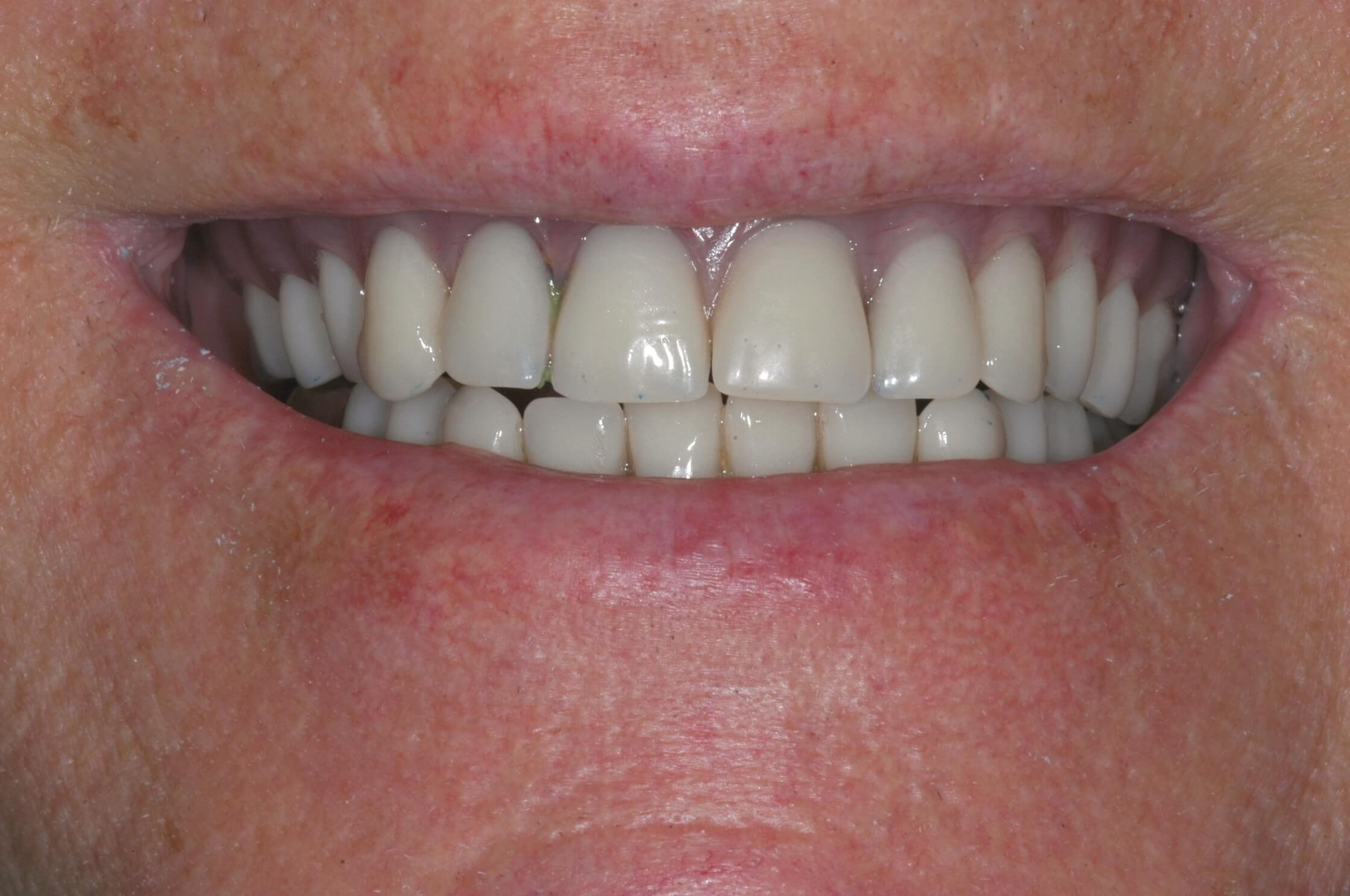 Retracted Smile 10 days after surgery