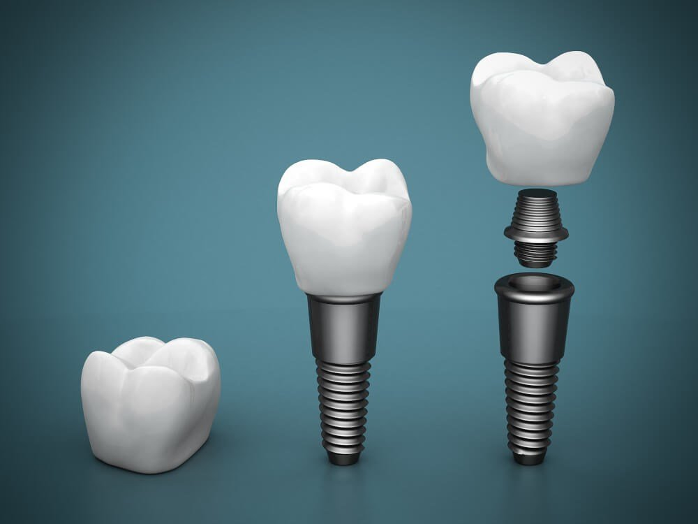 Tooth and Screws photo