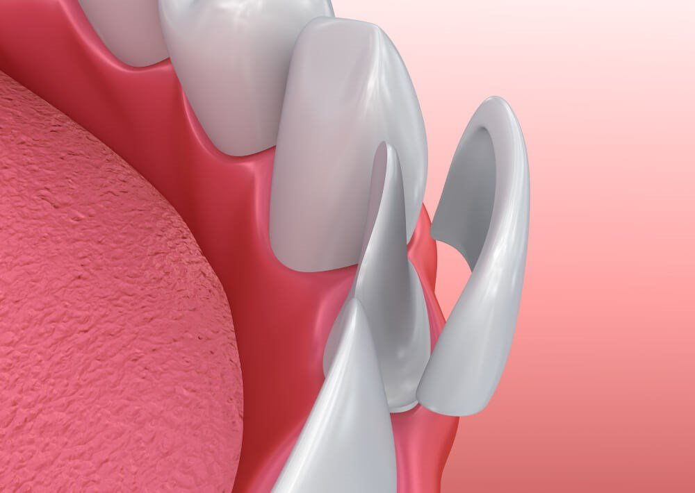 Veneer Over Tooth Photo